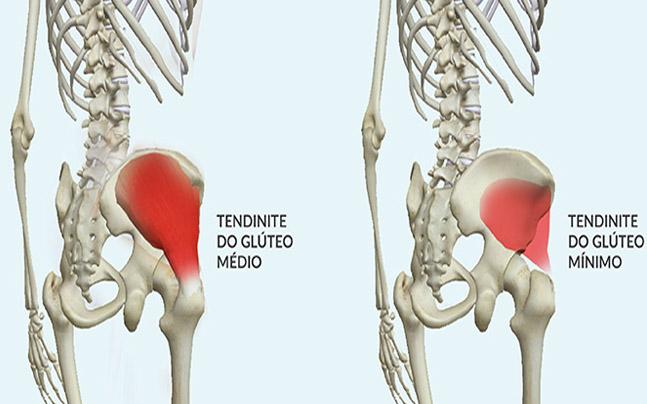 """Fisioterapia na """"tendinite"""" do glúteo médio e mínimo"""