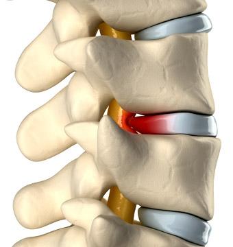 hernia-de-disco-causas-sintomas
