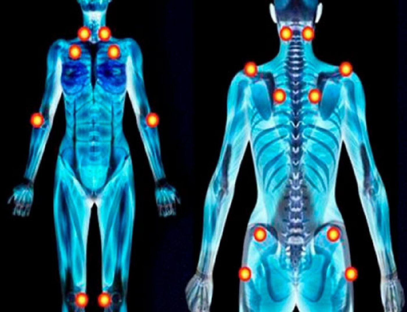 Pilates na fibromialgia
